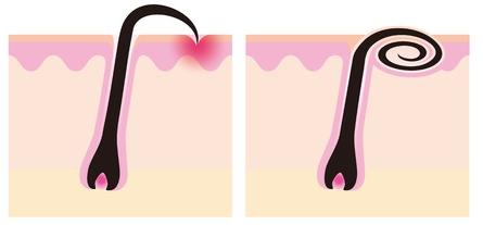 埋没毛による発毛への影響